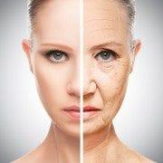Hyeprpigmentation aging skin