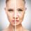 Hyperpigmentation – Facts, Tips & Treatments