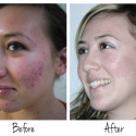 Teen Acne Treatments on Special