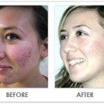 Dadashie Acne Results