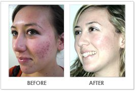 acne results