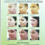 dadashie acne treatment