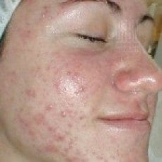 acne system for pimples